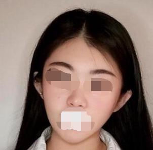 面部吸脂手术吸走了我多年的困扰 现在我的脸也是小V脸啦