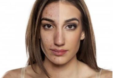 彩光嫩肤的功效 彩光嫩肤祛斑多少钱