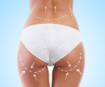 臀部吸脂塑型效果怎么样 拥有一个完美身材