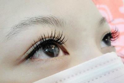 义乌植发整形医院做种植睫毛效果理想吗