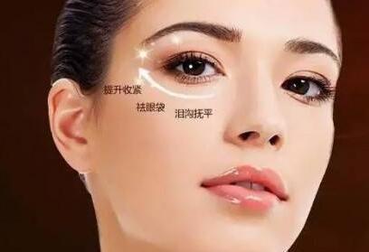 上海治疗眼袋医院排名 激光去眼袋效果怎么样