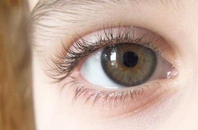 切开法双眼皮多少钱 全切双眼皮优缺点是什么
