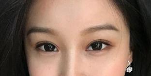 <font color=red>双眼皮修复</font>术修复了我的双眼皮 让我重新美丽了起来