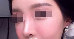 <font color=red>膨体隆鼻</font>改变了我的难看鼻梁 让我变得越来越美啦