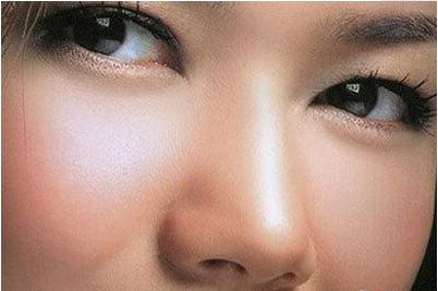 硅胶和膨体隆鼻哪个好 硅胶隆鼻价钱是多少