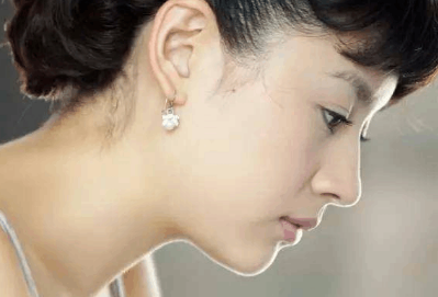 自体软骨隆鼻安全吗 自体软骨隆鼻优势有哪些