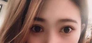 眼部综合术给了我完美的蜕变 变美使我越来越自信了