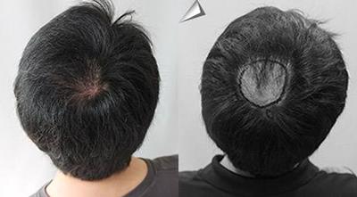 广州瑞丽诗植发整形医院做疤痕植发的优势