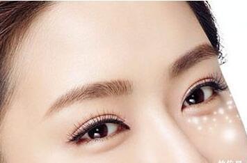 北京做下眼袋去除术得多少钱 激光去眼袋能维持多久