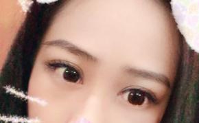 告别了单眼皮的烦恼 切开双眼皮给了我新的美丽面容