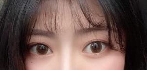 全切双眼皮真是太神奇了 让我的颜值高了不少