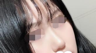 硅胶隆鼻改变了我的外在形象 现在我的外型越来越亮眼啦