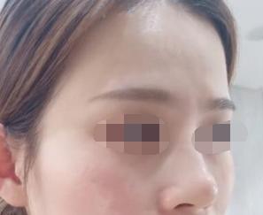 做整形医院很重要 做了鼻部修复后还我一个美丽的鼻梁