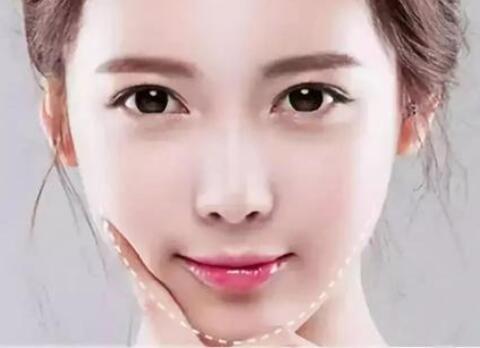 郑州最权威的整形美容医院吸脂瘦脸 打造精致瓜子脸