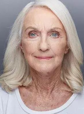 """Toni Goldenberg老奶奶80岁整容 """"拉皮筹款""""大瓶子收集手术费"""