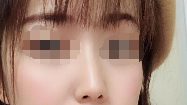 鼻子的好看太重要了 做了<font color=red>自体软骨隆鼻</font>我变美丽了很多
