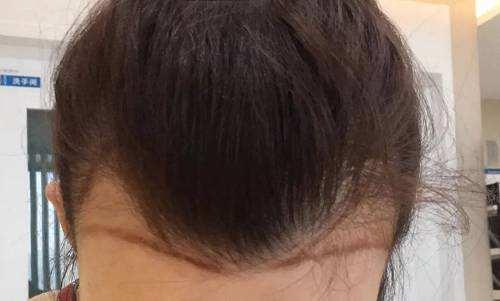 惠州微美美容整形医院头发种植 消除脱发困扰
