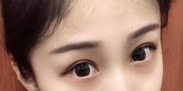 做完眼部综合手术 告别了自己没睡醒的状态变美只需这一步