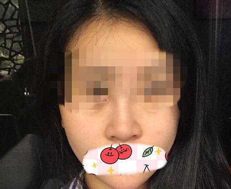 我的完美蜕变 沈阳美立方美容整形医院鼻综合手术经历