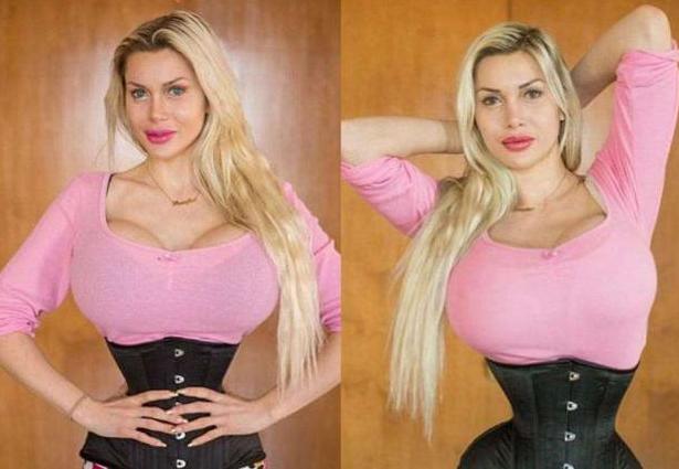 瑞典模特Pixee Fox整容成兔女郎 丰胸 截肋骨变峰腰