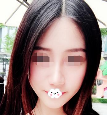 胖脸妹子的福音 脸部吸脂让我的脸小巧又精致