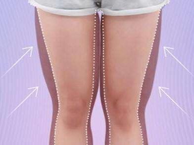 怎么瘦大象腿 青岛大学附属医院整形科大腿吸脂效果
