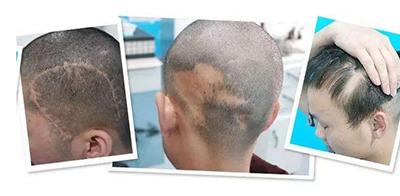 青岛熙朵美容医院植发整形美容科疤痕种植有用吗