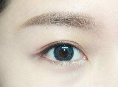 郑州美容整形医院哪家好 双眼皮修复价格是多少