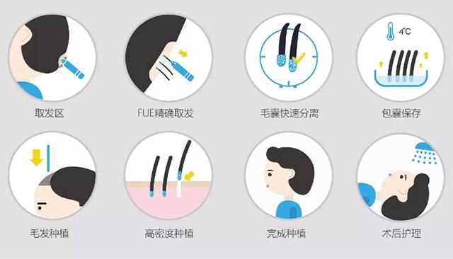 疤痕体质能植发吗 郑州美莱疤痕植发多少钱
