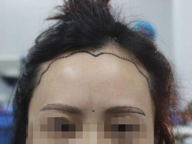 头发种植的效果怎样呢 上海愉悦美联臣植发费用高吗