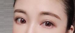 双眼皮手术早做早美丽 <font color=red>切开双眼皮</font>让我越来越优秀了