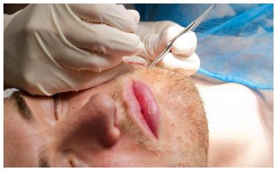 厦门植发哪家强 胡须种植手术过程是那几步