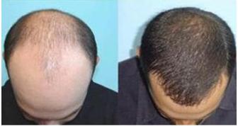 南宁科发源提取毛囊植发贵不贵 哪些年龄的人可以进行植发