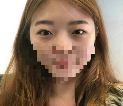 在苏州维多利亚做了双眼皮手术 终于摆脱我一单一双的尴尬