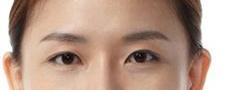 我和美女的差距就差一个双眼皮 做了双眼皮手术感觉真好