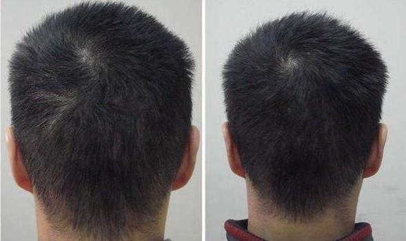 珠海新生疤痕植发效果及价格怎么样 植发后多久可以长出