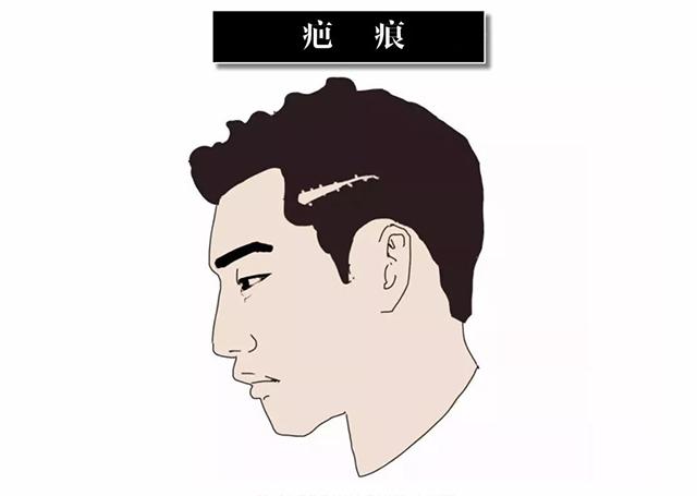 头上有疤痕做植发手术可以吗 芜湖伊莱美疤痕植发效果如何