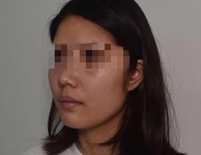 在徐州华美整形医院做了面部吸脂 美出了我想要的效果