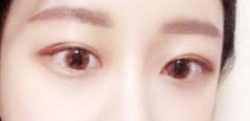做了双眼皮修复手术 完美的拯救了我的双眼皮