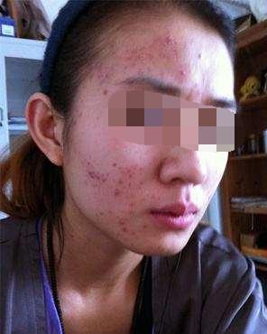 在重庆爱思特整形医院做了激光祛痘 终于不再为痘痘烦恼了
