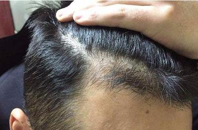 福州新生植发医院可靠吗 疤痕植发好吗 对身体有害吗
