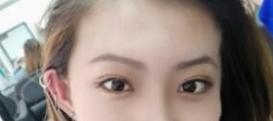 做了开眼角手术眼睛会笑了 人也变得更加美丽了呢