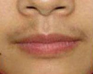 在兰州崔大夫整形医院做了唇部激光脱毛 终于不再是男人婆