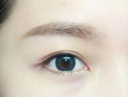 去眼袋的有效方法有哪些 西安华艺整形医院<font color=red>激光去眼袋</font>效果