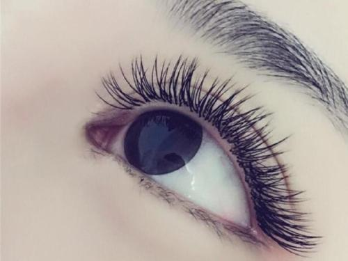 芜湖瑞丽医院眼部除皱 成功逆袭40岁变20岁少女