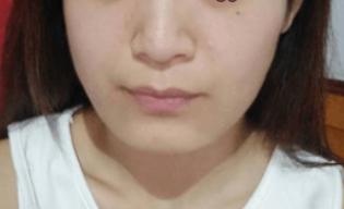做面部吸脂术让我的胖脸变小了 人也变得自信了不少