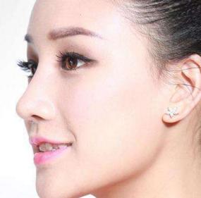 桂林美丽焦点整形美容医院假体隆鼻价格是多少 效果好不好