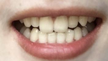 在安徽韩美口腔整形医院做了冷光美白 牙齿真的变白了好多