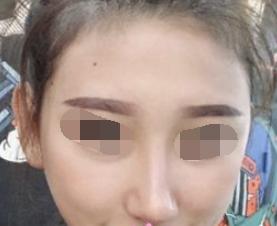 美不美就差一个高挺的鼻梁 自体软骨隆鼻的效果真实自然