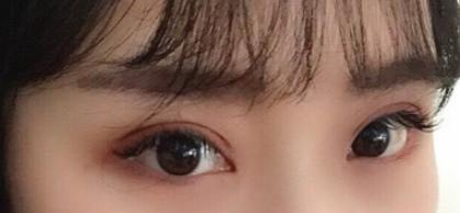 眼睛小真的影响美丽 开了内眼角让我变得美丽且不一样了